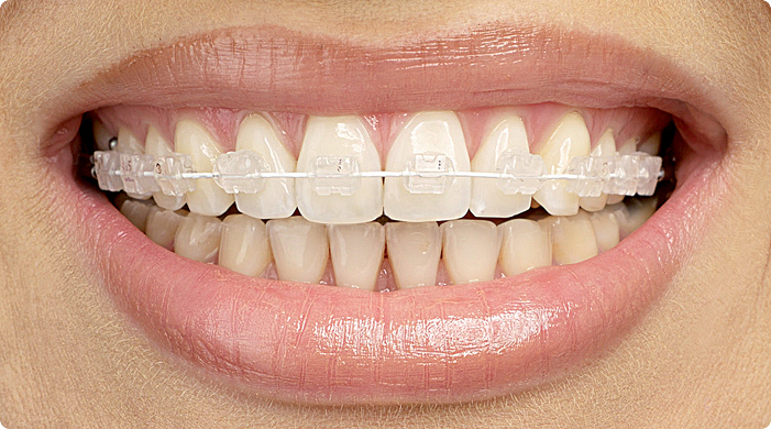 2D лингвальные брекеты на зубы, FORESTADENT