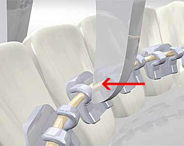 2D® Лингвальные брекеты закрываются с помощью щипцов Вайнгарта с удлиненными щечками или любыми другими аналогичными щипами