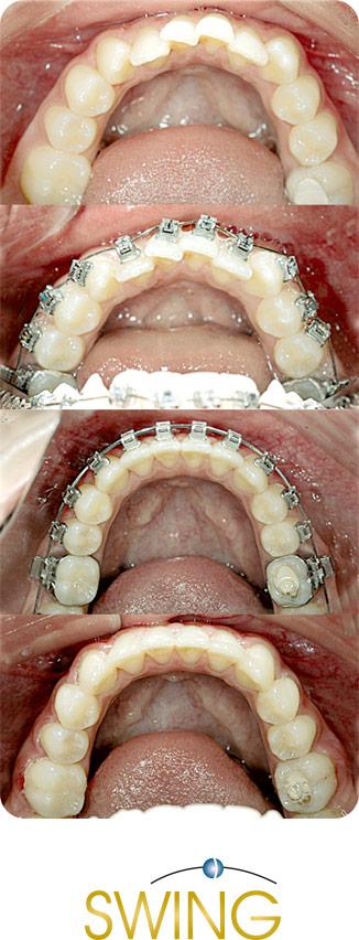 Протрузия нижней челюсти