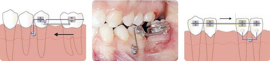 Поднять нижние зубы
